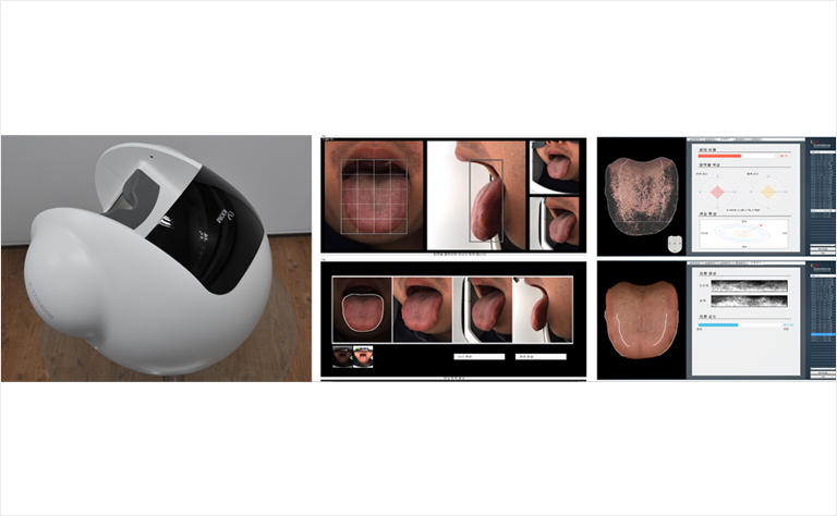 [Prototype of Multifocal Tongue Imaging Device and Its Display]